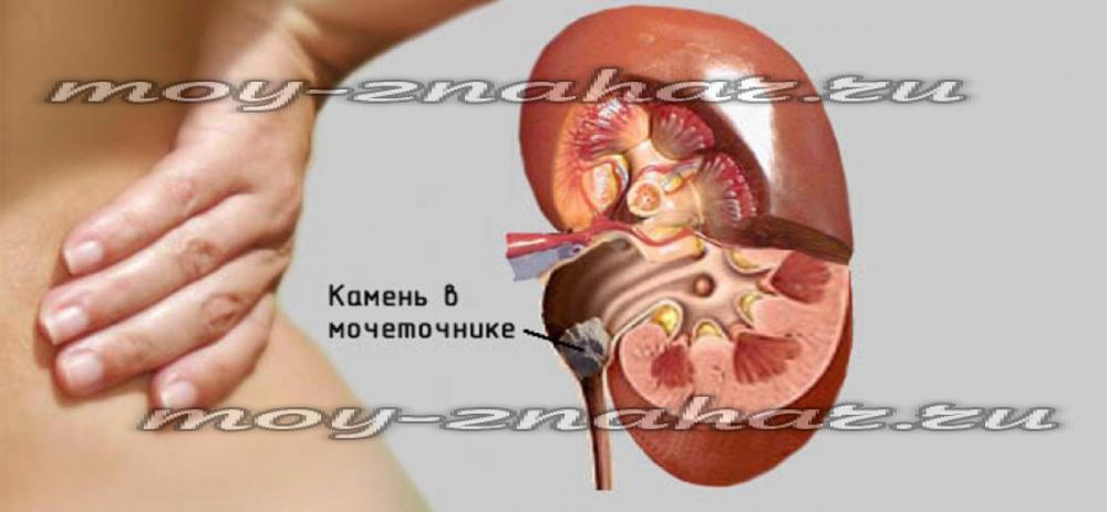 Как лечить мочекаменную болезнь народная медицина