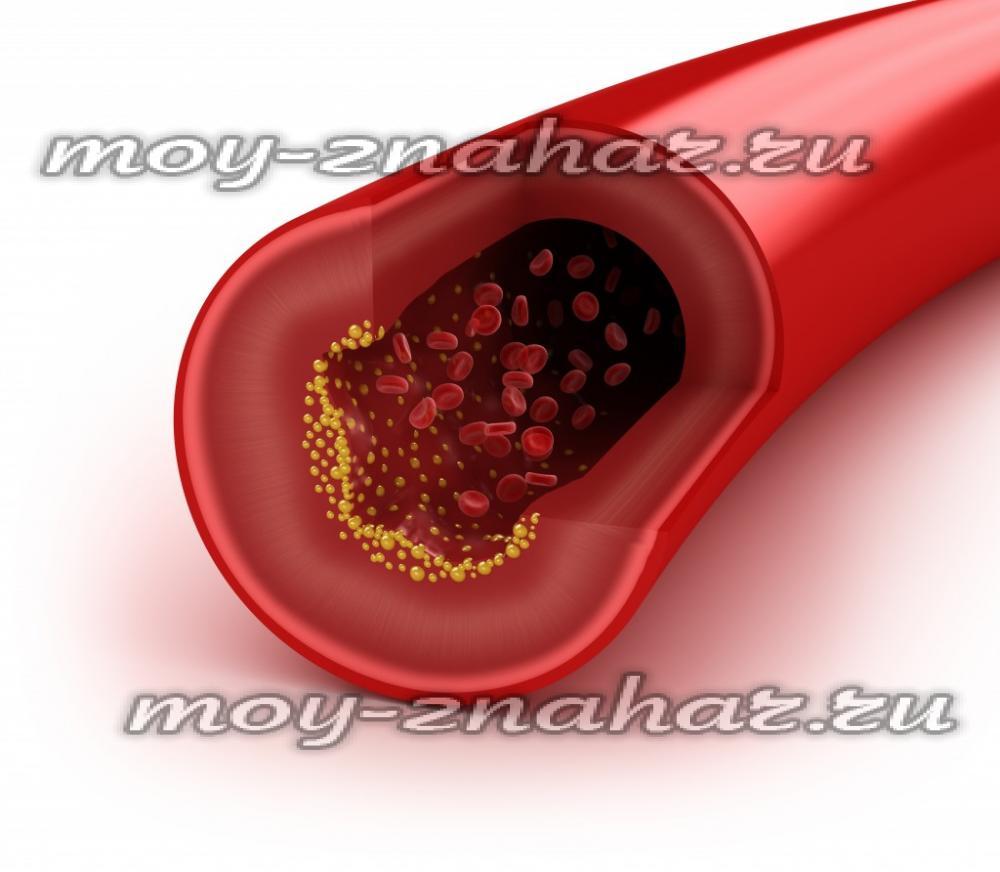 24Как в домашних условиях почистить сосуды от холестерина