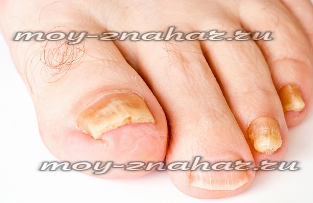 Лечение грибка ногтей ног таблетками