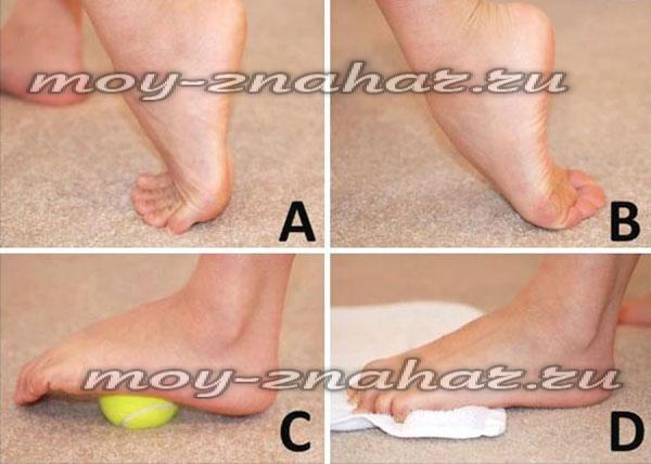 Как в домашних условиях лечить шпоры на ногах в домашних условиях