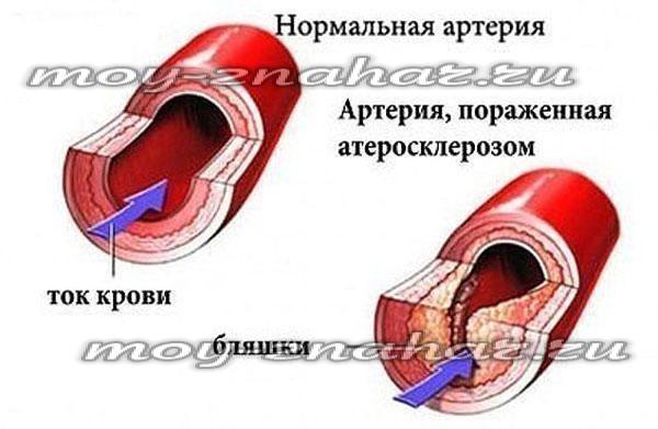 Как при беременности укрепить сосуды