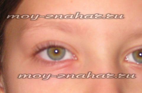 Как лечить ячмень на глазу у годовалого ребенка