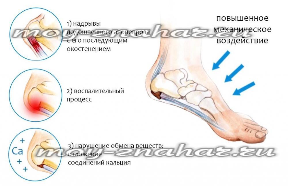 Причины боли в костях пяток