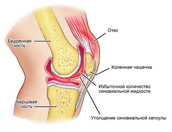 Воспаление коленного сустава лечение первая помощь и симптомы