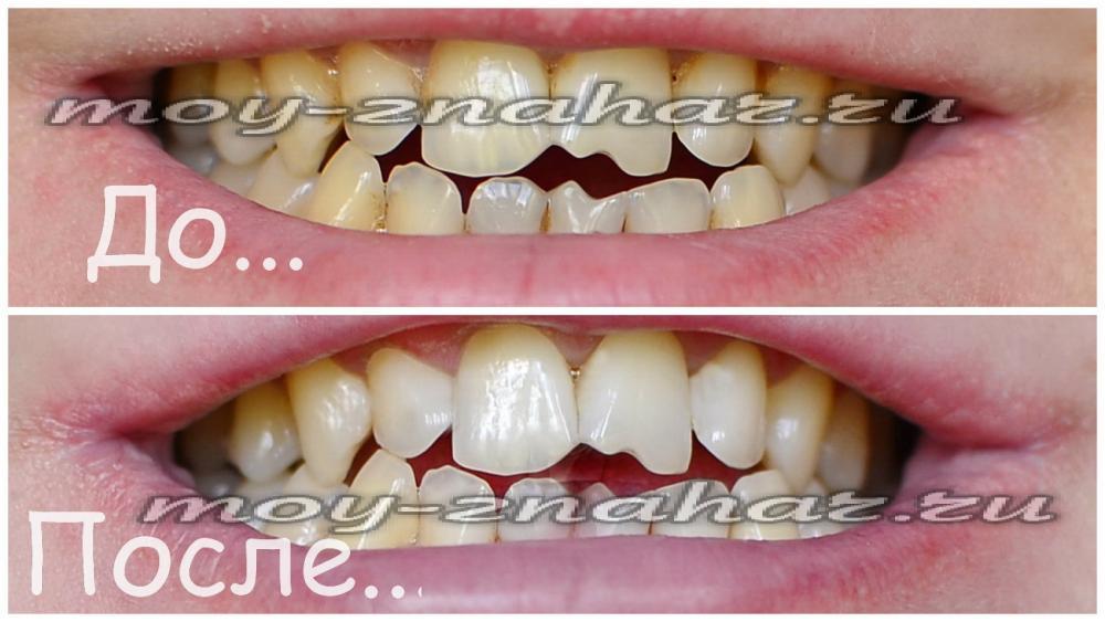 Отбеливание зубов активированным углем в домашних условиях
