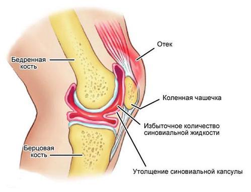 Жидкость в суставах причины и лечение народными средствами