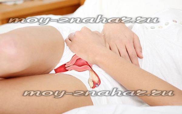 Как проявляется миома матки симптомы и признаки при климаксе