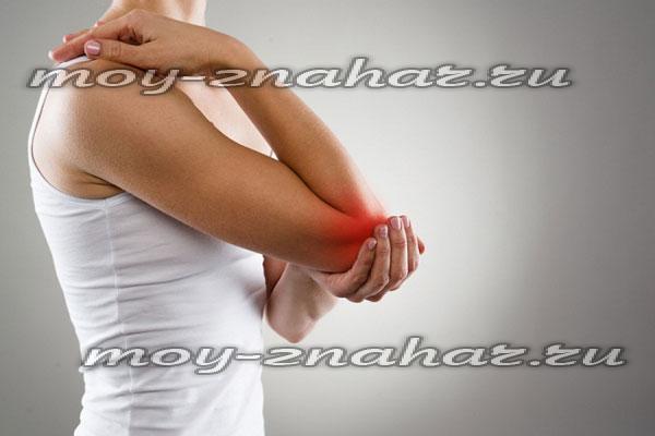 артрит голеностопного сустава рентген