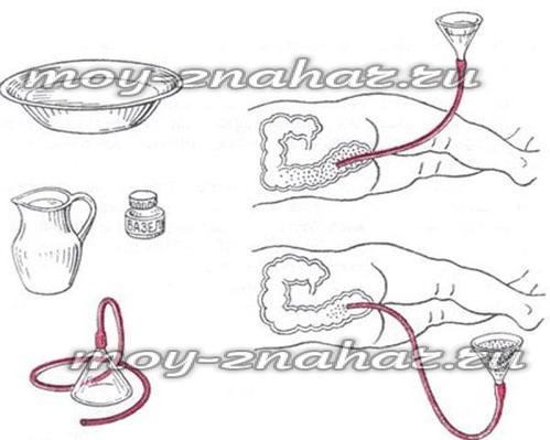 Чесночная клизма от простатита простатит таблетки для лечения