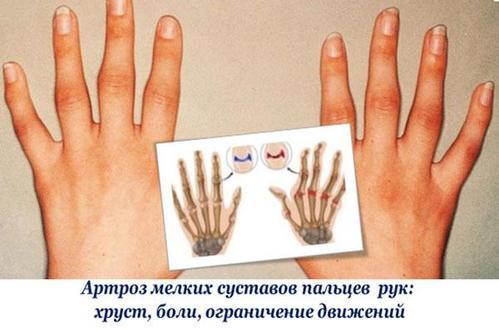 Хрустят суставы по всему телу причины лечение
